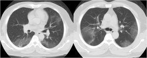 Dos TC axiales de tórax con ventana pulmonar sin contraste demuestran GGO multifocal en ambos pulmones en un paciente con neumonía por COVID-19.