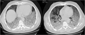 Dos TC axiales de tórax con ventana pulmonar sin contraste muestra una opacidad en empedrado en la base de ambos pulmones en un paciente con neumonía por COVID-19.
