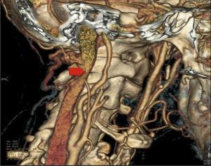 Angio-CT showing stenosis in cervical segment of the right internal carotid artery compatible with an internal carotid artery dissection.