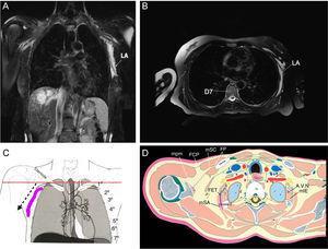 (A) RM T2 – sequência de imagem ponderada na subtração de gordura: secções axial e sagital através da parede torácica imediatamente após a injeção do anestésico local. (A, B) Vistas axial e sagital que mostram a propagação do anestésico local entre o músculo serrátil anterior e o músculo intercostal externo após a abordagem anterior do PIFS. (C) Diagrama que mostra a direção da agulha em linha pontilhada e a propagação do anestésico local (roxo). (D) Visão sagital da parede torácica (T3) que mostra o anestésico local entre o músculo serrátil anterior (mSA) e o músculo intercostal externo (mIE), músculo subclávio (mSC), fáscia peitoral (FP), fáscia externa torácica (FET), músculo peitoral menor (mpm), artéria, veia e nervo intercostal (A, V, N).