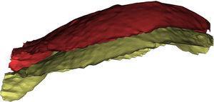 Reconstrução em 3D do diafragma na varredura no fim da inspiração (amarelo) e varredura no fim da expiração (vermelho).