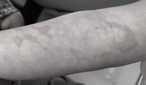 Esmaecimento das lesões na face ventromedial do antebraço direito e surgimento de padrão reticular 12horas após a alta hospitalar.