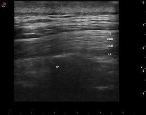 Vista pós‐injeção mostra o processo transverso (TP) e as camadas superiores do músculo eretor da espinha (ESM), músculo principal romboide (RMM) e trapézio (TZ) e a dispersão linear do anestésico local (LA) no plano muscular‐fascial entre o músculo eretor da espinha e o processo transverso.