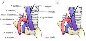 Dois possíveis diagramas da lesão da artéria subclávia (ASC) direita durante a canulação da veia jugular interna (VJI). (A) O fio‐guia foi inserido na VJI, mas o dilatador penetrou tanto na VJI como na ASC. (B) O fio‐guia foi inserido na VJI, mas o dilatador contornou a VJI e penetrou na ASC.