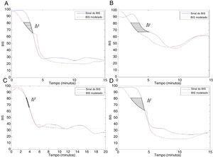 Tempo de atraso (Δt) entre o BIS real e o modelado para: (A) paciente n° 5; (B) paciente n° 19; (C) paciente n° 22 e (D) paciente n° 27.