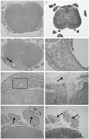 A–H Achados micrográficos leves nas medulas espinhais dos ratos após administração subaracnoidea de 100μg (Grupo 1) e 800μg (Grupo 2) de (S)‐(+)‐cetoprofeno. (A) Grupo C (3° dia): medula espinhal com histomorfologia normal, coloração de hematoxilina e eosina, ampliação original 40×. (B) Coloração imuno‐histoquímica com coloração de neurofilamentos, 40×. (C) Grupo 1 (7° dia): Inflamação histiocítica e formação cística no funículo dorsal da medula espinal (seta), coloração de hematoxilina e eosina, ampliação original 40×. (D) Um exame mais detalhado da seção em (A) revela que a inflamação consiste em histiócitos, eosinófilos e neutrófilos, coloração de hematoxilina e eosina, 400×. (E) Grupo 2 (7° dia): Inflamação na região dorsal da medula espinal (quadrado), coloração de hematoxilina e eosina, 200×. (F) Grupo 2 (7° dia): Estudo imuno‐histoquímico com proteína de neurofilamento que demonstra áreas inflamatórias não coradas na região dorsal (seta), coloração imuno‐histoquímica com coloração de neurofilamento, 100×. (G) Grupo 2 (7° dia): vacuolização axonal (setas), hematoxilina e eosina, 100×. (H) Grupo 2 (7° dia): degeneração axonal e diminuição da mielina (setas), coloração imuno‐histoquímica com coloração de neurofilamento, 100×.