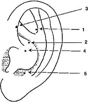 Pontos auriculares escolhidos para colocação da agulha: (1) Shen Men, localizado no ponto de bifurcação das partes superior e inferior da crura anti‐hélice e terço lateral da fossa triangular; (2) Rim, localizado no topo da concha e abaixo da bifurcação anti‐hélice; (3) Simpático, entre o ramo inferior da anti‐hélice e hélice; (4) Estômago, onde termina a hélice; e (5) Occipital, localizado no canto superior posterior lateral do do antitrago.