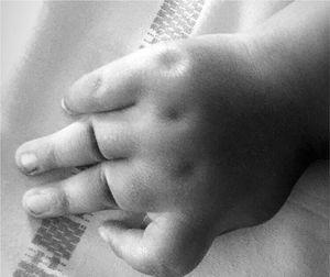 Foto da mão esquerda da paciente, mostrando a presença da camptodactilia no indicador e a adução do polegar.