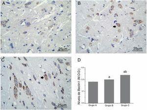 Comparação dos níveis de Beclin1 nos neurônios da medula espinhal de ratos. (A, B e C) mostram mudanças em Beclin1 (seta preta) observadas pela coloração com IHQ (ampliação, 400×). (D) mostra a comparação quantitativa dos níveis de Beclin1. M.O.D., Densidade Óptica Média; a, p < 0,05 em comparação com o GrupoA; b, p < 0,05 em comparação com o GrupoB.