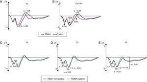 Representación gráfica de los potenciales evocados cognitivos en TDAH (A y B) y entre los subtipos combinados e inatento (C-E).