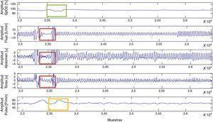 Posible episodio de apnea. Disminución de la saturación parcial de de oxígeno (SpO2) (verde), comportamiento de las señales de flujo y esfuerzo torácico y abdominal (rojo) y aumento del pulso cardiaco (amarillo).