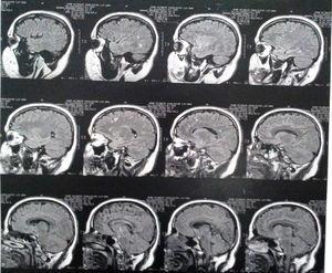 Resonancia magnética cerebral del caso a los 3años de la primera consulta por psiquiatría.