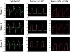 Simulación ventilación mandatoria en paciente con ARDS. Las 3 opciones estudiadas mantuvieron la presión seleccionada en el equipo de VNI y evitaron la reinhalación de CO2.