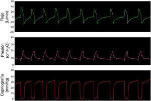 Simulación ventilación espontánea en paciente sano con la opción 3.
