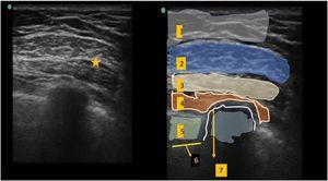 Ecografía del bloqueo Pecs II. Sitio de inyección entre el músculo pectoral mayor y el músculo pectoral menor. 1. Tejido subcutáneo. 2. Músculo pectoral mayor. 3. Músculo pectoral menor. 4. Músculo serrato anterior. 5. Músculo intercostal. 6. Pleura. 7. Costilla.