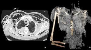 A: Imagen axial de TAC torácica con ventana de pulmón en la que se observa la rotura traqueal (cabeza de flecha negra), neumomediastino y marcado enfisema celular subcutáneo (flecha curva). En el hemitórax derecho se observa derrame pleural de alta densidad en relación con hemotórax (cabeza de flecha blanca), así como opacidades parcheadas en vidrio deslustrado en el parénquima pulmonar en relación con afectación por SARS-CoV-2 (flecha recta blanca). B: Reconstrucción 3D del enfisema subcutáneo.