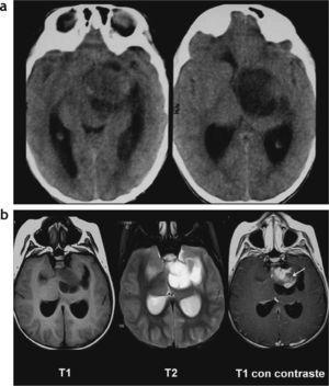 Astrocitoma pilocítico tálamo-lenticular. (a) Tomografía computada: en la región tálamo-lenticular izquierda se observa una lesión sólido-quística, cuya porción sólida es iso-hipodensa y comprime al tercer ventrículo, generando dilatación del sistema ventricular; (b) resonancia magnética: lesión sólido-quística cuya porción sólida es hipointensa en ponderación T1 e hiperintensa en ponderación T2, con realce heterogéneo poscontraste de la porción sólida (flecha).