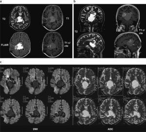 Astrocitoma pilocítico mesencéfalo-talámico. (a y b) Resonancia magnética: se observa una lesión heterogénea predominantemente quística con un nódulo sólido heterogéneo (flecha roja), que se origina en el mesencéfalo y se extiende en sentido cefálico, comprometiendo el tálamo derecho. La parte quística del tumor es levemente hiperintensa en ponderación T1 y marcadamente hiperintensa en ponderación T2 y FLAIR, debido a la presencia de un alto contenido proteico-hemático (flecha azul). Su porción sólida presenta realce heterogéneo poscontraste; (c) en la difusión se observa una leve restricción del movimiento de las moléculas de agua en la porción sólida.