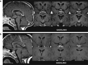 Astrocitoma pilocítico hipotálamo-quiasmático que involucionó parcialmente. Paciente de sexo masculino con neurofibromatosis tipo 1: (a) a los 3 años se le diagnosticó un glioma en la región hipotálamo-quiasmática con incremento del volumen y realce heterogéneo poscontraste endovenoso; (b) en un control, 3 años más tarde, se observa una involución parcial con reducción del volumen de la lesión y ausencia de realce poscontraste endovenoso.