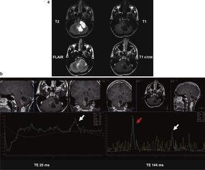 Astrocitoma pilocítico cerebeloso (recidiva posquirúrgica). (a) Resonancia magnética en el hemisferio cerebeloso izquierdo y el vermis cerebeloso, se observa una lesión heterogénea, predominantemente quística, bilobulada, hipointensa en ponderación T1 e hiperintensa en ponderación T2 y FLAIR (alto contenido proteico), con realce periférico poscontraste. (b) En la espectroscopia (tiempo de eco corto y largo), se observa un incremento de los picos de colina (flecha roja) y de láctico y lípidos (flecha blanca).
