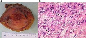Xantoma intraóseo: (a) pieza quirúrgica y (b) microscopía del preparado anatomopatológico de la lesión (tinción de hematoxilina-eosina, magnificación por200). Se reconoce un extenso infiltrado de histiocitos espumosos (flechas).