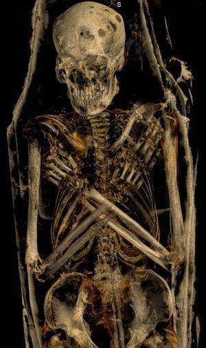 Reconstrucción tridimensional con ventana ósea de la momia masculina: se observan los brazos cruzados sobre el pecho (posición de Osiris) y múltiples lesiones líticas en la calota.