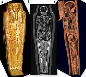 (a) Reconstrucción tridimensional del ataúd en vista coronal. (b) Tomografía computada multicorte, plano coronal, muestra a la momia dentro de su ataúd. (c) Vista sagital tridimensional con ventana ósea del esqueleto y el ataúd.
