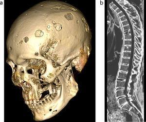 (a) Reconstrucción ósea tridimensional de la calota y el maxilar, vista parasagital, evidencia múltiples lesiones líticas. (b) Vista sagital de la columna dorsolumbar con ventana ósea muestra acuñamiento anterior de la 7.a vértebra dorsal.