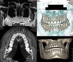 Examen con protocolo escáner dental y reconstrucción tridimensional de ambos maxilares de la momia femenina: hay indemnidad de las piezas y raíces dentales.