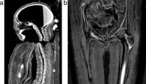 Tomografía computada multicorte. (a) Vista sagital: desarticulación del esternón y desalineación de la columna cervical. (b) Vista coronal de la región pelviana con cabalgamiento de los huesos pubianos.