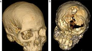 (a y b) Reconstrucciones óseas tridimensionales del cráneo del paquete funerario: se observa ausencia occipital parcial y material denso irregular dentro de la calota.
