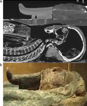 (a) Vista sagital de Herwodj, a nivel de la región maxilofacial, con máscara facial de madera en la misma ubicación. (b) Fotografía de la máscara facial del ataúd de la misma momia.
