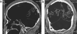 (a) Vista sagital de la calota craneana con solución de continuidad a nivel esfenoidal. Se evidencian restos meníngeos. (b) Vista coronal muestra el tentorio y restos meníngeos.