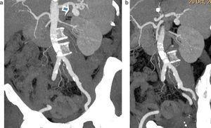 (a y b) Reconstrucciones en proyecciones de máxima intensidad de angiografía por tomografía computada de aorta que evidencia una imagen sacular en el hilio esplénico, compatible con aneurisma de la arteria esplénica (flecha en a).