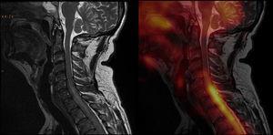 Imágenes de fusión entre la resonancia magnética y la tomografía por emisión de positrones en secuencia sagital ponderada en T2 en la columna cervical: hay alteraciones de intensidad de señal a nivel de la médula, en la transición cérvico-dorsal, a partir de aproximadamente el espacio intervertebral C5-C6; así como también se notan alteraciones en la intensidad de señal del líquido cefalorraquídeo, coincidente con el hipermetabolismo descrito por el estudio PET a nivel de la médula espinal. Inicialmente se creyó que era un componente de tejido blando epidural, fundamentalmente anterior, que generaba evidente compresión medular, provocando cierta hiperintensidad intramedular (sugestiva de edema medular de carácter compresivo). Esta hacía difícil descartar totalmente cierto grado de infiltración de la estructura medular.