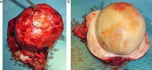 (a y b) Pieza quirúrgica del divertículo uretral con litiasis.