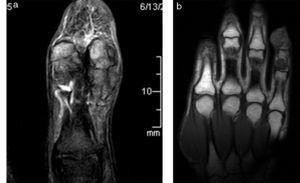 Tumor de células gigantes de la vaina sinovial. (a) En la secuencia en densidad protónica con supresión grasa, corte coronal, se evidencia una formación lobulada que engloba completamente al tendón flexor propio. Tiene una señal predominantemente baja y heterogénea, con un tenue edema de partes blandas subyacente. (b) En la secuencia en ponderación T1, en corte coronal, se observa el caso de dos lesiones hipointensas de similar tamaño, englobando al tendón flexor propio del 5.° dedo en la topografía falángica media y distal (presentación infrecuente).