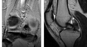 (a) Sinovitis vellonodular pigmentada tipo focal en la rodilla. En la secuencia gradiente de eco en corte coronal, se constata una pequeña formación hipointensa, con áreas de menor intensidad de señal en su periferia que corresponden a depósitos de hemosiderina (efecto blooming). (b) En la secuencia en densidad protónica se ve una formación lobulada iso-hipointensa y heterogénea en relación posterior con el ligamento cruzado posterior. Se acompaña de una leve efusión articular.