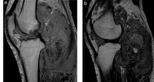 (a y b) Sinovitis vellonodular pigmentada en forma difusa en la rodilla. En las secuencias en densidad protónica y ponderación T2, en corte sagital, se detectan múltiples áreas de engrosamiento sinovial con patrón difuso. En su interior se muestran también pequeños focos hipointensos con menor intensidad de señal, que corresponden a depósitos de hemosiderina (efecto blooming).