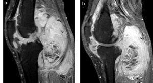 (a y b) Sinovitis vellonodular pigmentada variedad difusa. En las secuencias con supresión grasa en corte sagital y con contraste endovenoso, se observa un refuerzo homogéneo donde se siguen detectando las áreas hipointensas correspondientes a los depósitos de hemosiderina. También se evidencian pequeñas erosiones óseas en el sector posterior del cóndilo femoral.