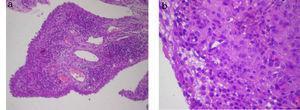 (a) Tejido sinovial, aumento 10x: se revela una sinovial de aspecto papilar con revestimiento hiperplásico y un marcado infiltrado inflamatorio mononuclear en el corion. (b) Tejido sinovial, aumento 40x: se destaca un infiltrado inflamatorio en el corion linfoplasmocitario, acompañado de histiocitos cargados de hemosiderina.