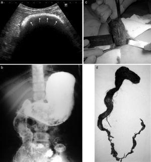 Niña de 10 años con tricobezoar. (a) La ecografía con ecogénica en arco muestra sombra acústica (flechas), mientras que (b) la SEGD revela un defecto de relleno en la cámara gástrica. Fotos de (c) la laparoscopia y (d) la pieza quirúrgica del tricobezoar.