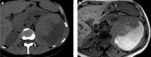 Carcinoma de células renales con transformación sarcomatoide en una mujer de 39 años que presenta un dolor de 3 días de evolución y caída del hematocrito. (a) La TC sin contraste revela una gran masa renal izquierda con hemorragia interna y (b) la RM en ponderación T1 en la misma paciente objetiva el contenido hemático del tumor en diferentes estadios de evolución.
