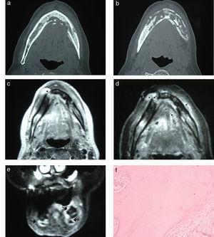 Osteonecrosis por bifosfonatos. (a y b) Tomografía computada del maxilar inferior, corte axial: se aprecia la necrosis afectando el hueso medular y ambas corticales (asteriscos). (c) Resonancia magnética en ponderación T1 del maxilar inferior, corte axial: se observa un cambio de señal del hueso medular por la osteonecrosis que se extiende hacia las corticales, con afectación de los tejidos blandos adyacentes (cabezas de flechas). (d) Resonancia magnética en ponderación T2 con supresión grasa, corte axial: se advierte, además del compromiso óseo, la afectación de los tejidos blandos con señal hiperintensa (flechas). (e) Resonancia magnética en ponderación T2 con supresión grasa, corte coronal: se evidencia un aumento de la señal en los tejidos blandos y el maxilar inferior (flechas). (f) Anatomía patológica de la lesión, tinción con hematoxilina-eosina con aumento x 500: se observan fragmentos óseos necróticos y tejido de granulación con fibrosis.
