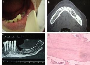 Osteonecrosis por bifosfonatos. (a) Fotografía de la cavidad oral focalizada en la lesión ulcerada y necrótica en el maxilar inferior. (b) Tomografía computada del maxilar inferior, corte axial: se observa la necrosis ósea afectando el hueso medular y ambas corticales (asteriscos). (c) Escáner dental con reconstrucción coronal: se aprecia la necrosis maxilar (cabezas de flechas) contactando con el conducto dentario inferior (C). (d) Anatomía patológica de la lesión, tinción con hematoxilina-eosina con aumento x 500: se evidencia la necrosis ósea y el tejido inflamatorio asociado.