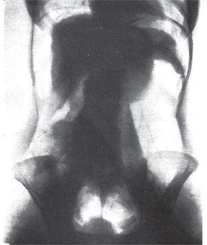 Neumoperitoneo diagnóstico normal. Se muestran los órganos abdominales delineados por aire21.