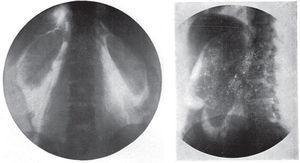 Neumoretroperitoneo diagnóstico. A la izquierda se observa un estudio normal y a la derecha, un quiste renal26.