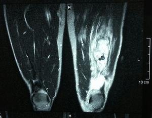 Resonancia magnética TSE en ponderación T2, corte coronal, de ambos muslos. La imagen comparativa evidencia un adecuado trofismo muscular con una colección hemática y un edema cuadricipital izquierdo.
