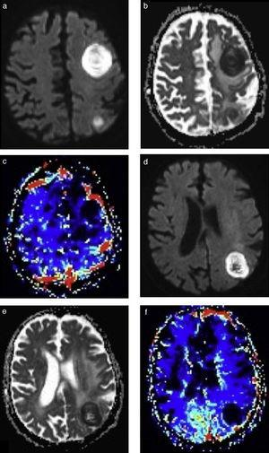 Abscesos cerebrales bacterianos: comportamiento en la perfusión. La RM en las secuencias seleccionadas, en los 2 pacientes con AC bacterianos confirmados luego de su evacuación quirúrgica, presenta (a y d) el clásico fenómeno de restricción en la difusión y (b y e) un mapa de ADC con (c y f) valores bajos de volumen sanguíneo cerebral en la perfusión.