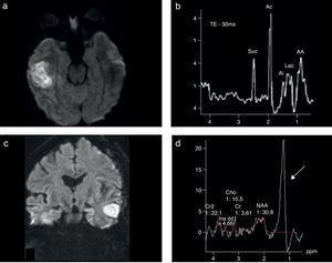 Espectroscopia en abscesos cerebrales bacterianos: trazados metabólicos. Se muestran dos casos de AC: (a y b) uno temporal derecho luego de una otitis media, con mala evolución, y (c y d) otro temporal izquierdo luego de la cirugía de un tumor de alto grado. En el 1.er caso se muestra el trazado típico de estas lesiones con metabolitos: aminoácidos (AA), acetato (Ac), succinato (Suc) y lactatos (flecha). El 2.° caso, de importante dificultad diagnóstica, muestra (c) el fenómeno de restricción en la difusión y (d) el patrón más frecuente con niveles muy elevados de lípidos/lactatos en el sector central de la lesión.